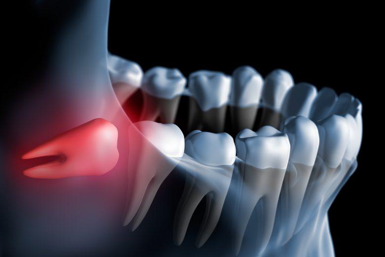 zdjęcie prześwietlenia szczęki z jednym czerwonym zębem